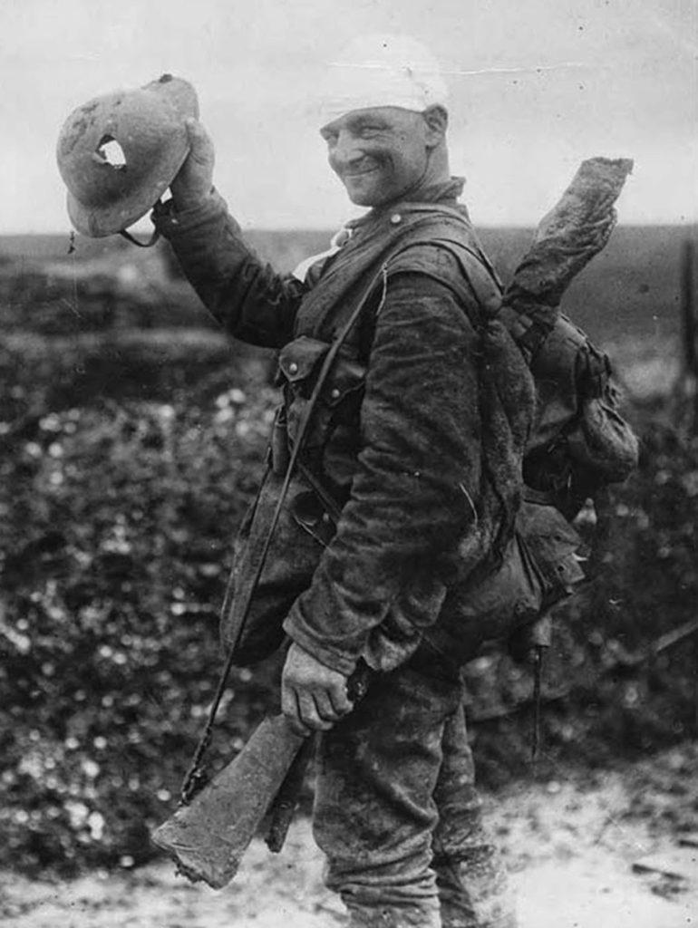 Британский солдат демонстрирует свой поврежденный шлем, 1917
