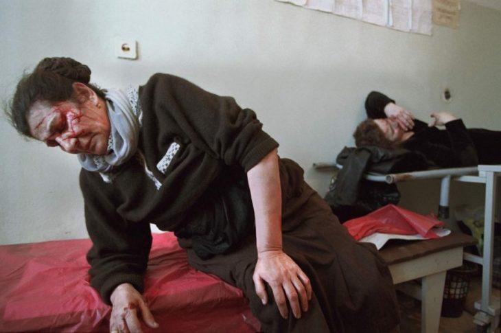 Мирные жители в больнице в Грозном, март 2002 года.
